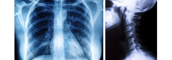 X-Rays at Hedlund Chiropractic